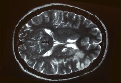 An MRI scan of the human brain