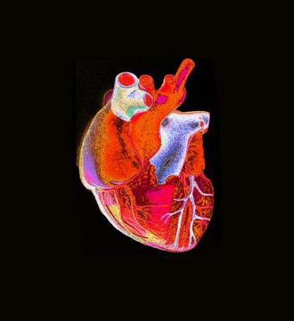 Msc In Cardiology School Of Medicine Trinity College Dublin
